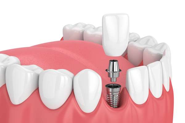 How Painful is Dental Implant Surgery from Town Square Dentistry in Boynton Beach, FL